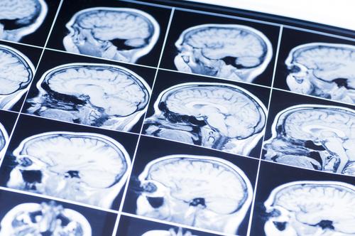 How do you prove a concussion