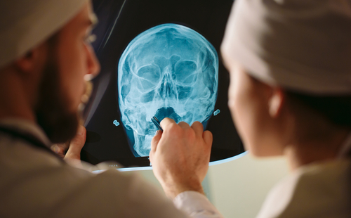How long does a brain injury take to heal